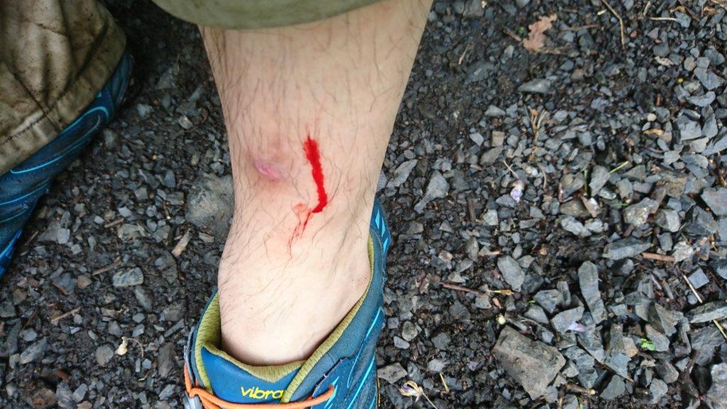 出血した足