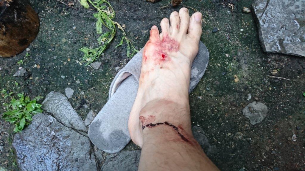 ヒルに血を吸われた足